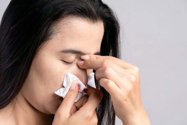 nainen kärsii nenäverenvuodosta